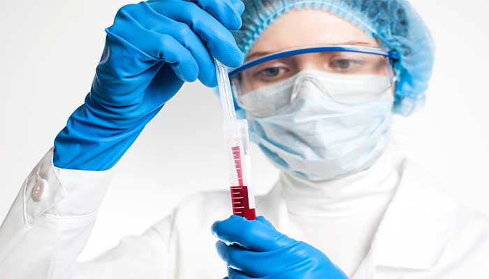 What Is An ESR Blood test?